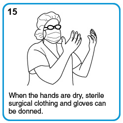 When the hands are dry, sterile surgical clothing and gloves can be donned.